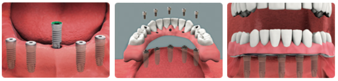 Fixed implant supported restoration