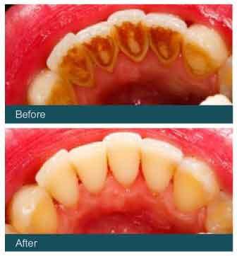 Dental Hygienist Glasgow