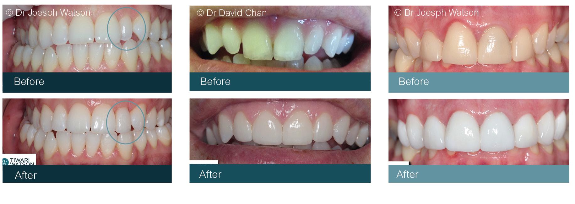 Cosmetic Dentistry Glasgow