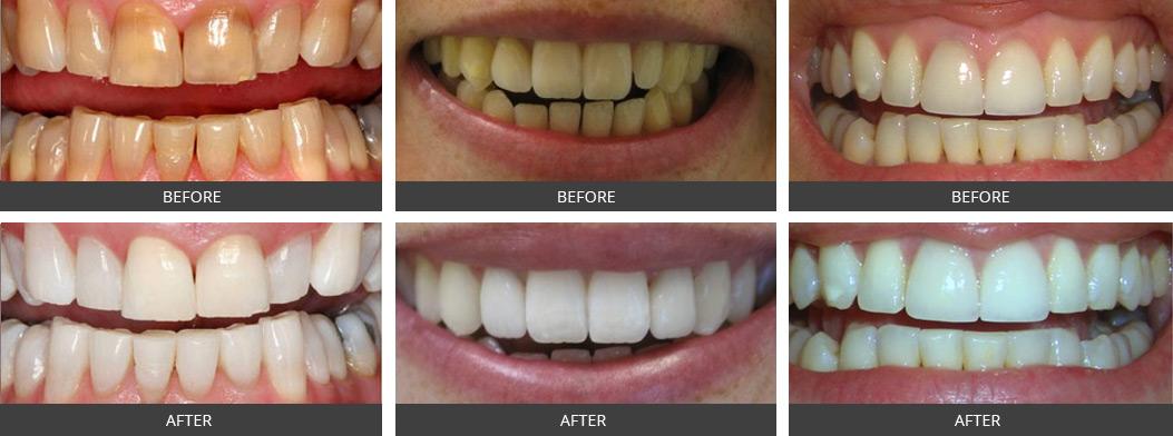 Teeth Whitening Examples