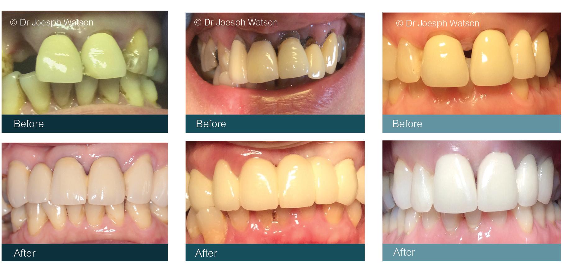 Cosmetic Dentist Glasgow