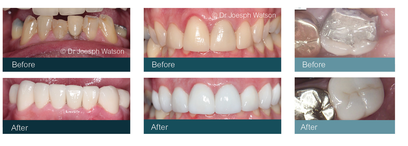 Cosmetic Dentist Crowns Glasgow