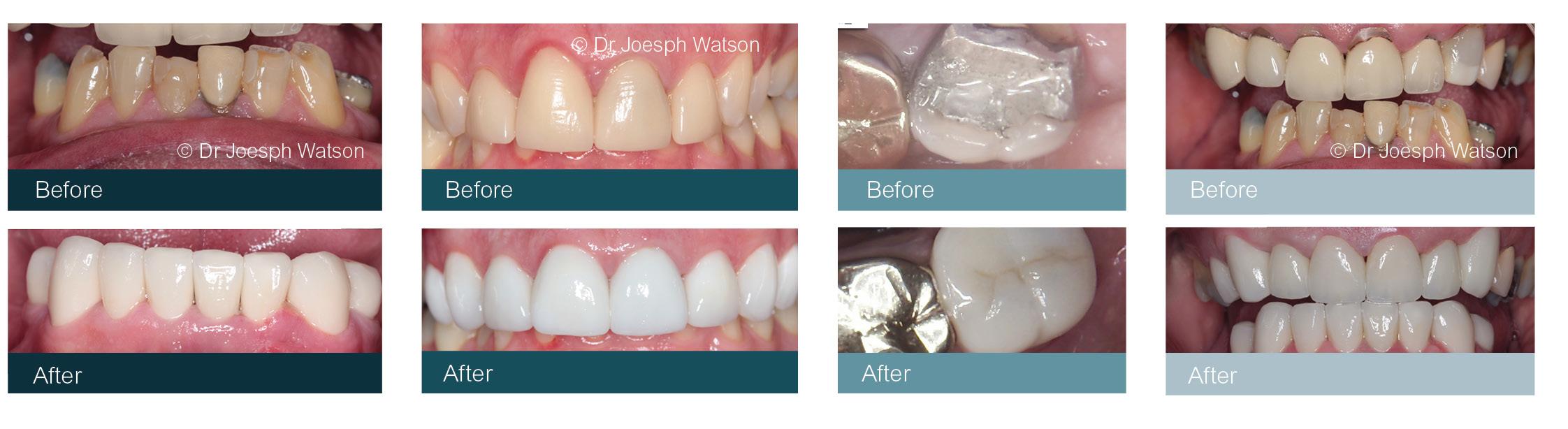 Crowns Dentist Glasgow