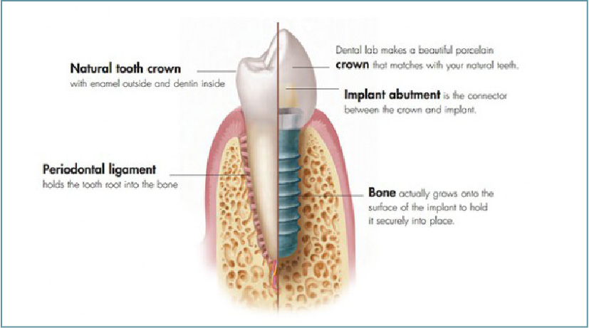 Dental Implants Glasgow