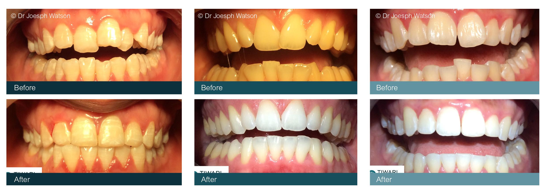 Teeth Straightening Glasgow