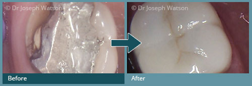Before and after All Ceramic Crowns Treatment IMages