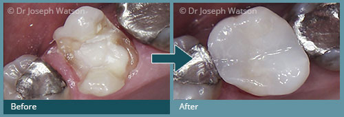 White Fillings Treatment - before and after images in Glasgow