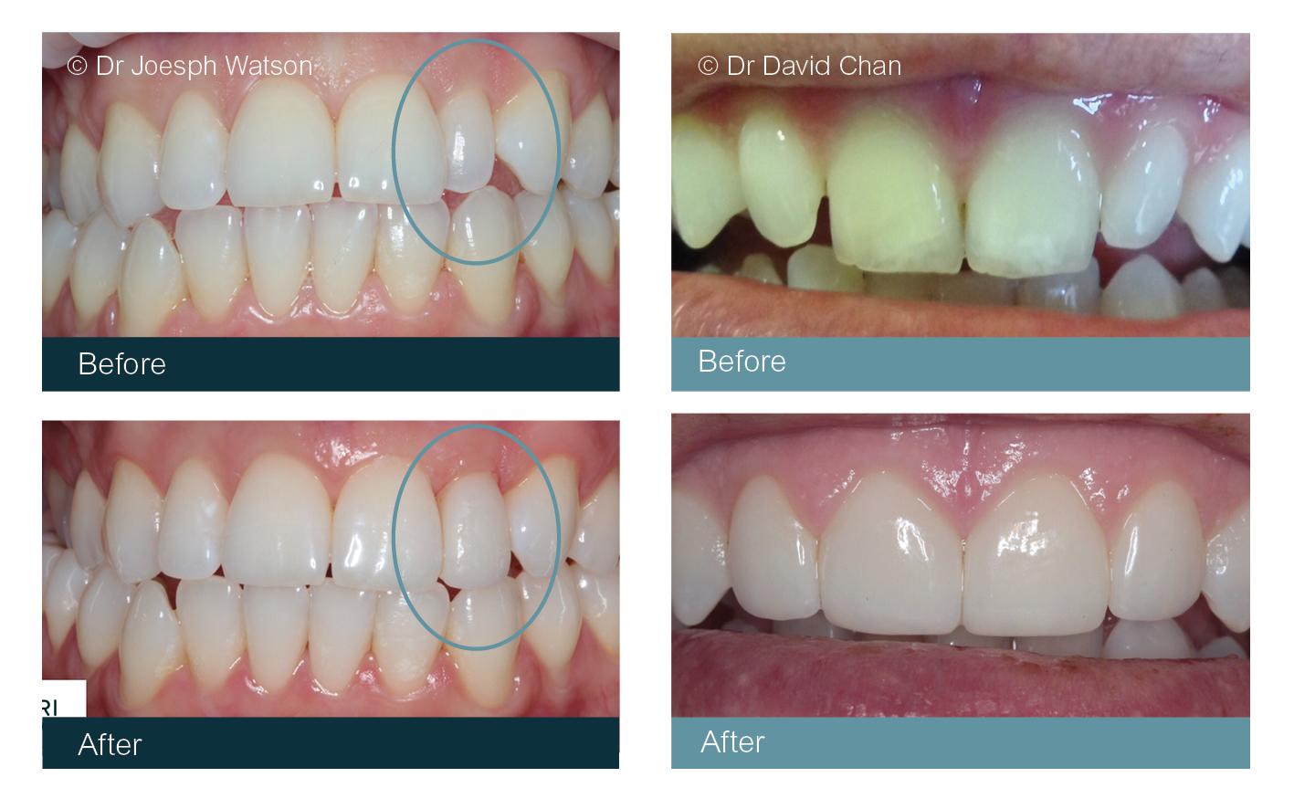 osmetic Dentist Veneers Glasgow