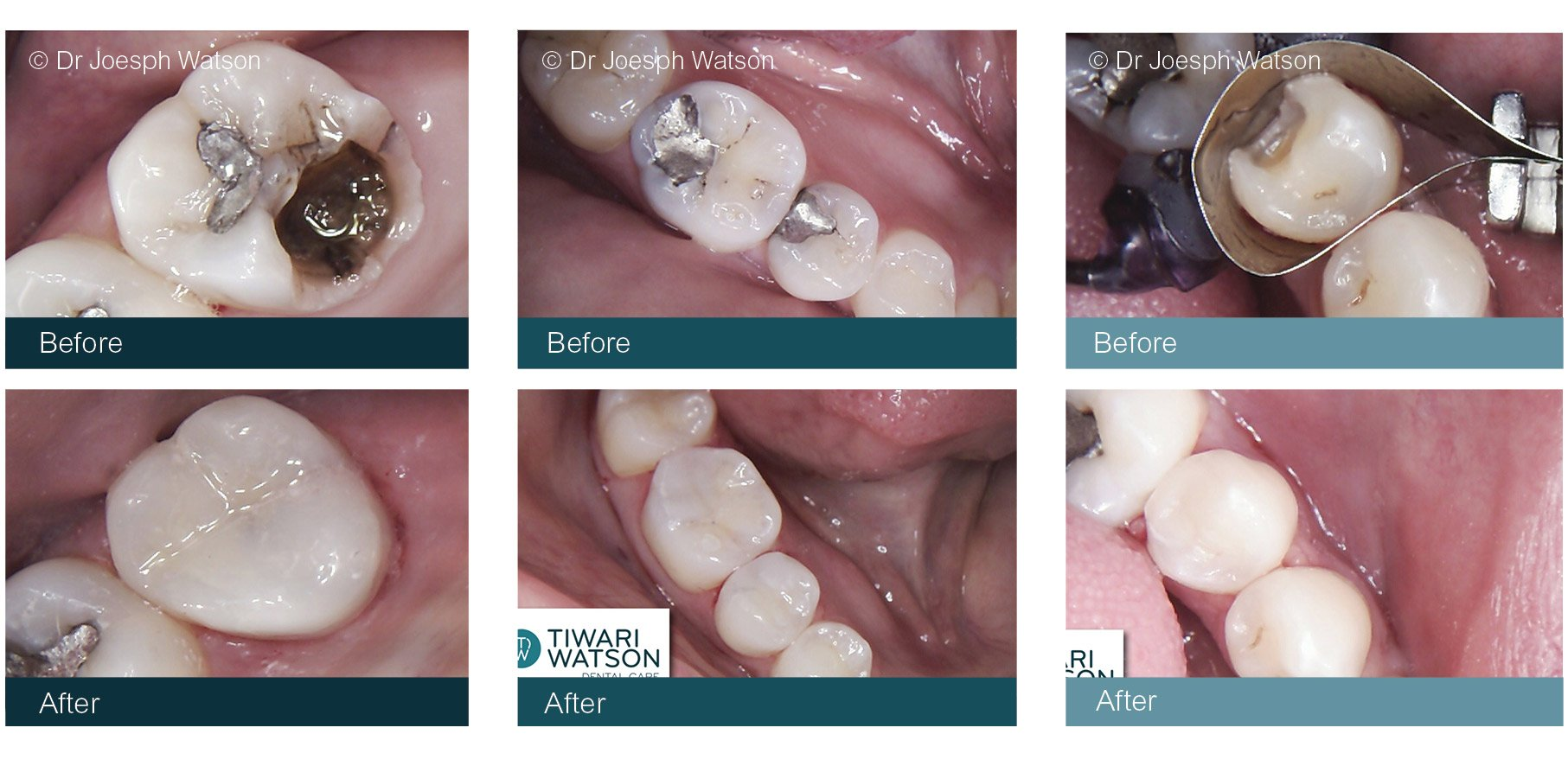 White Fillings | Glasgow | Tiwari Watson Dental Care