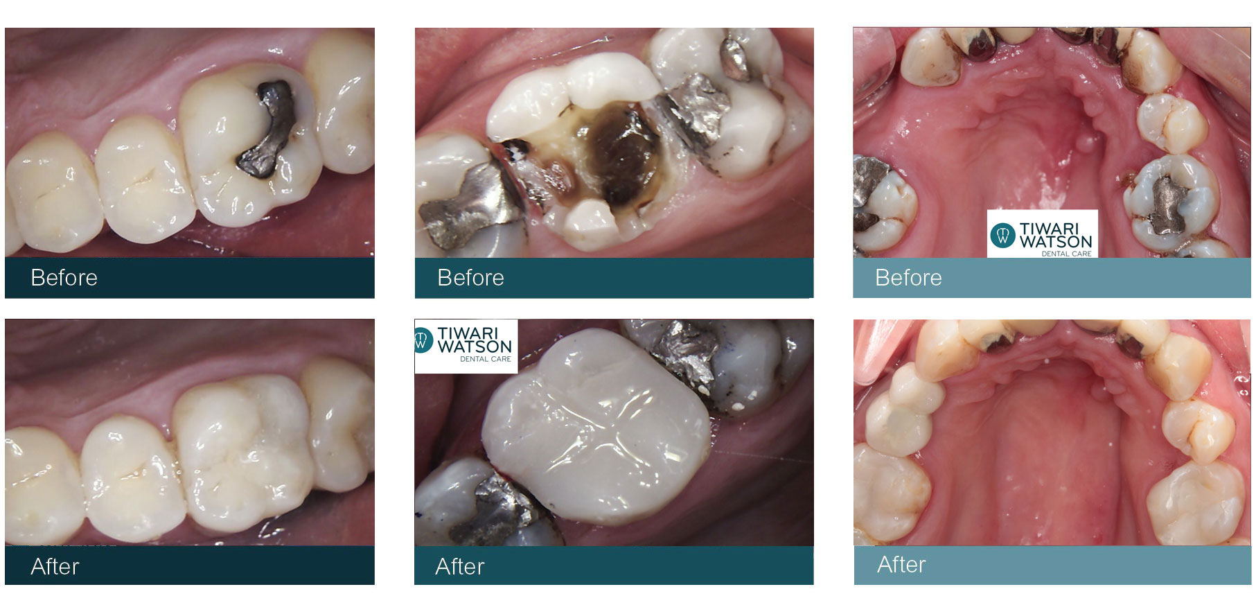 Cosmetic Dentist White Fillings Glasgow