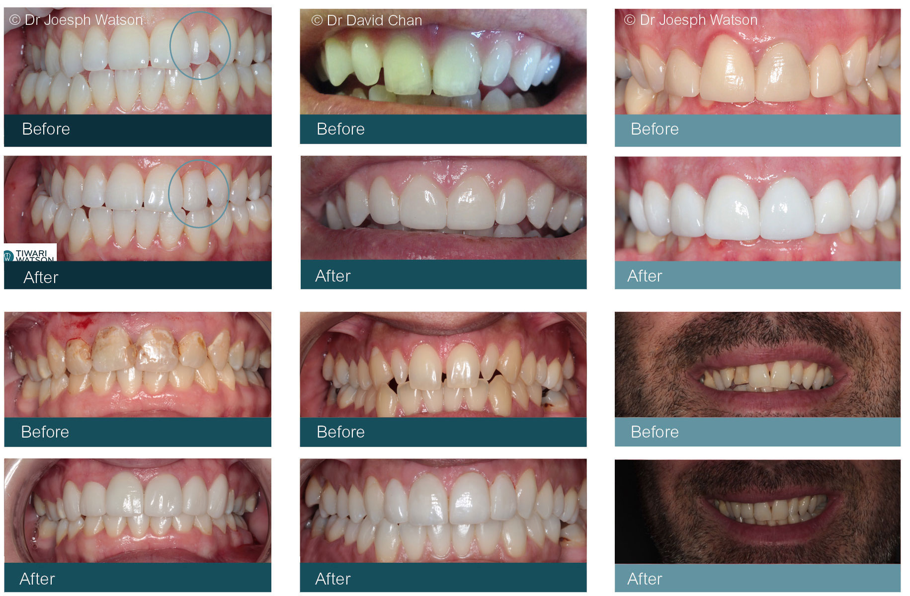Dental Veneers Glasgow