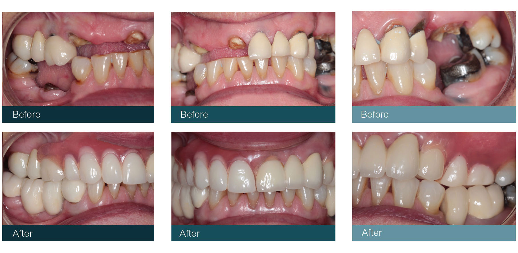 Flexible Dentures Glasgow